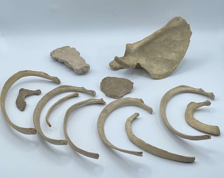 Lot Of Antique Medical Paediatric Skeleton Bones