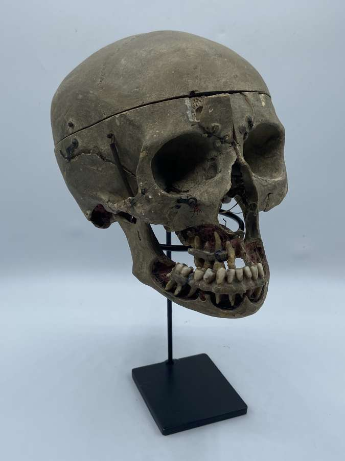 Antique 19th Century Medical 11 Part Demonstration Human Skull