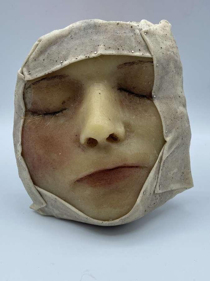 Antique Paediatric Medical Death Moulage Swolen & Bruised Face