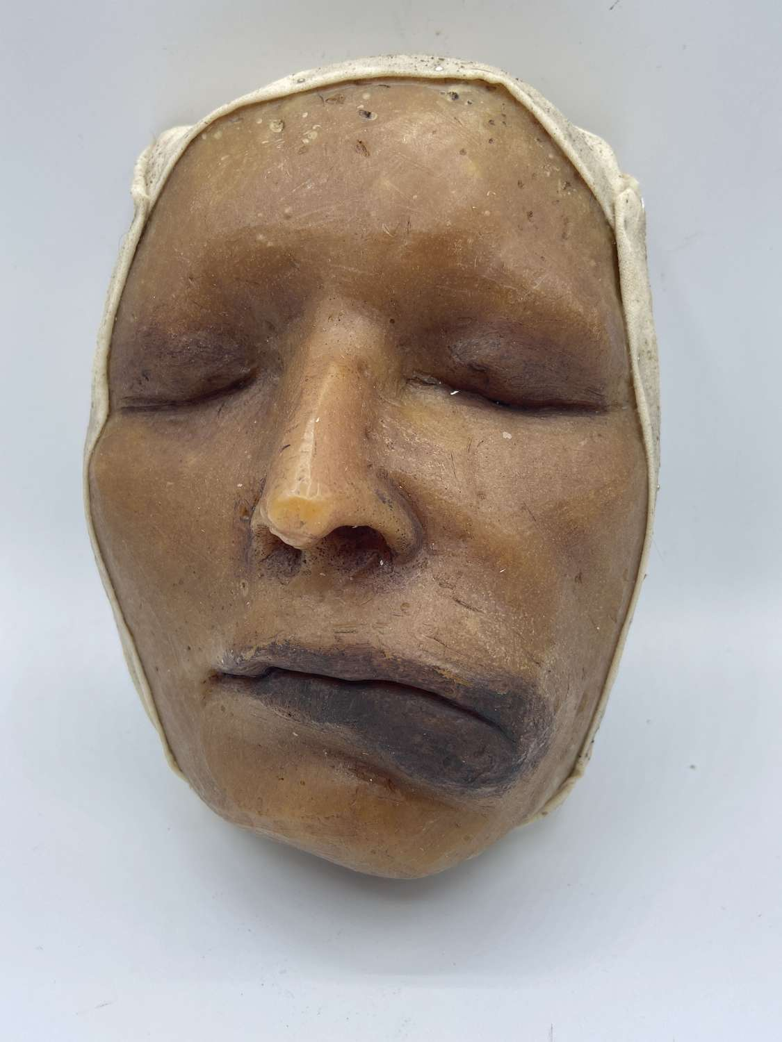 Antique Wax Medical Death African American Moulage Female Swollen Lip