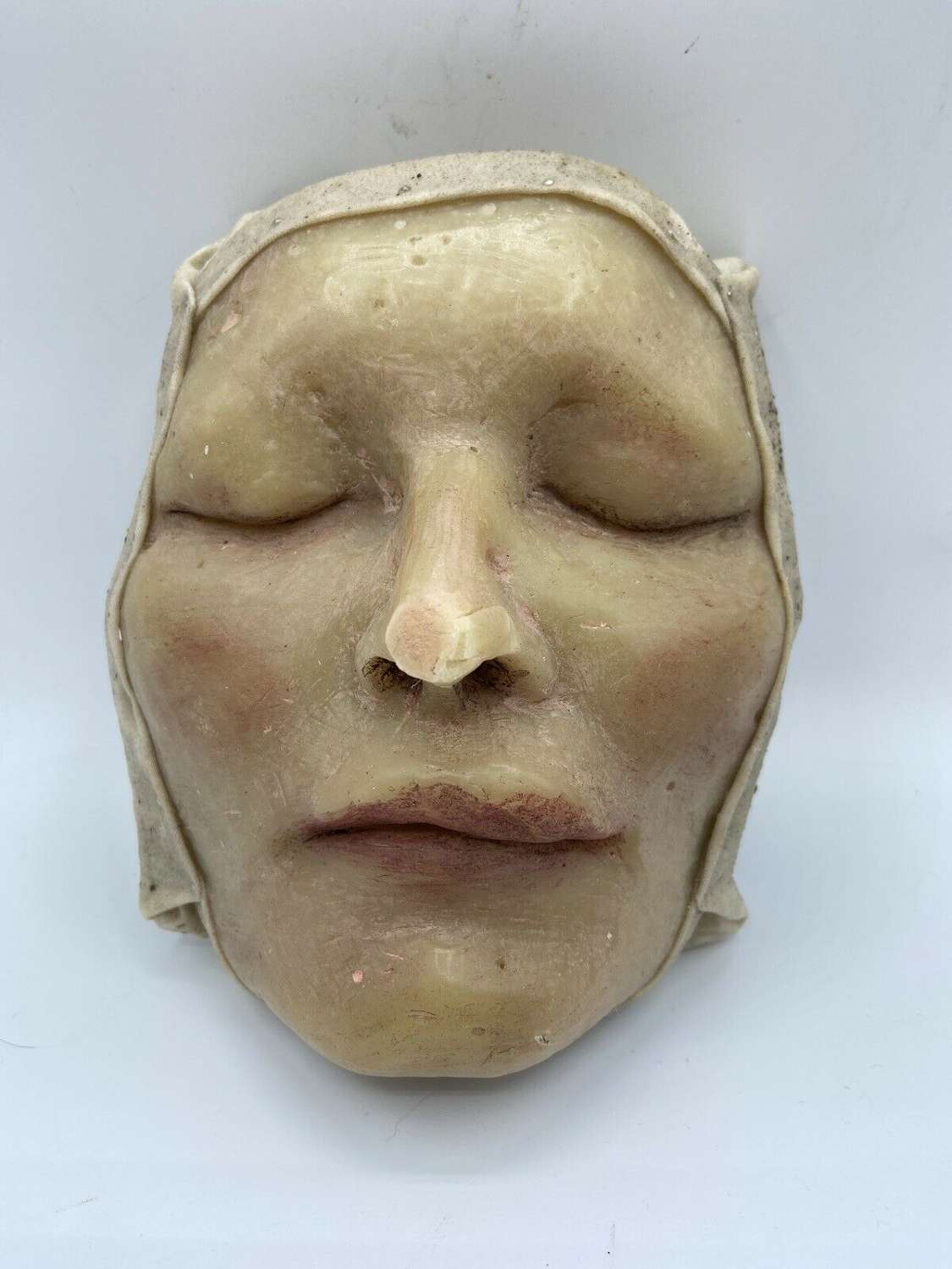 Antique Medical Taxidermy Wax Moulage Of Female With A Swollen Lip
