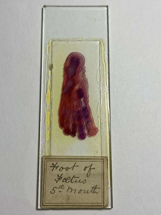 Antique 5 Month Old Foetus Foot Sectional View Microscope Slide