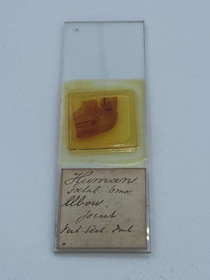 Antique Microscope Slide Of Human Foetal 6 Months Elbow Joint