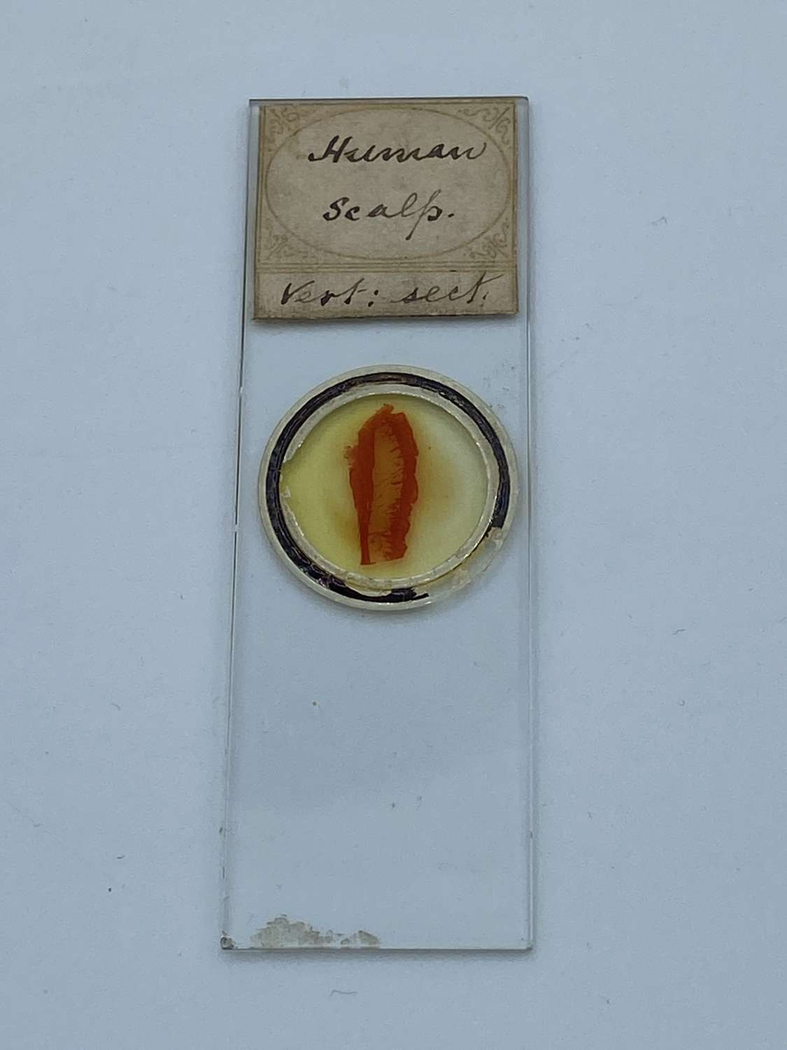 Antique Microscope Slide Human Section Scalp Vertical Section