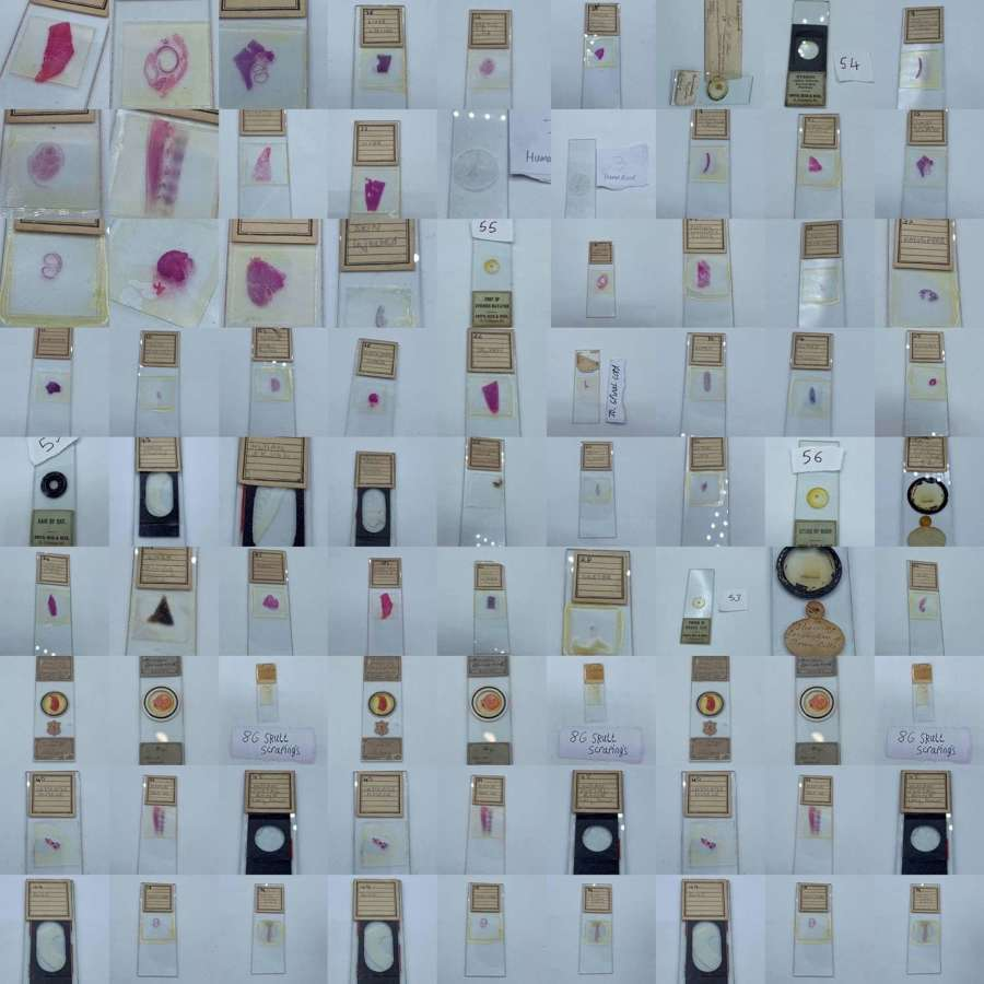Antique Collection Of Human Pathology Microscope Slides
